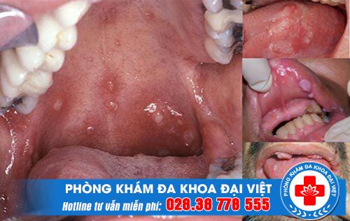 sui-mao-ga-o-mieng-co-dot-duoc-khong